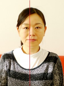 小顔矯正施術前5